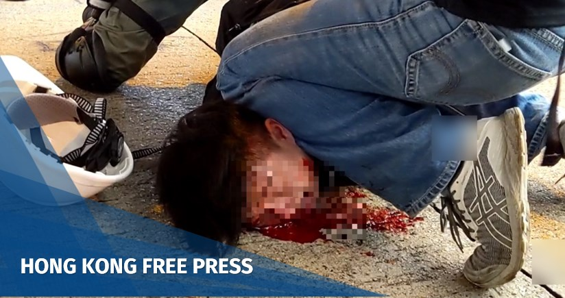 Video: Hong Kong police make bloody arrest, assisted by officers suspected to be undercover as protesters | SD News